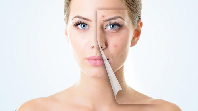Improve Your Skin Tone